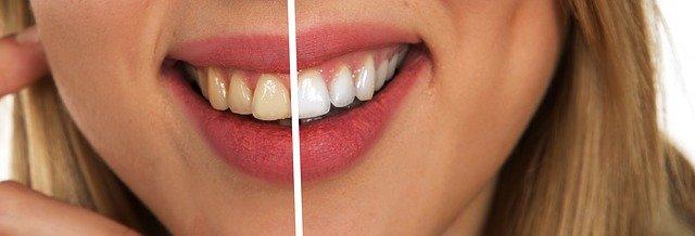 Come avere i denti bianchi: consigli e rimedi