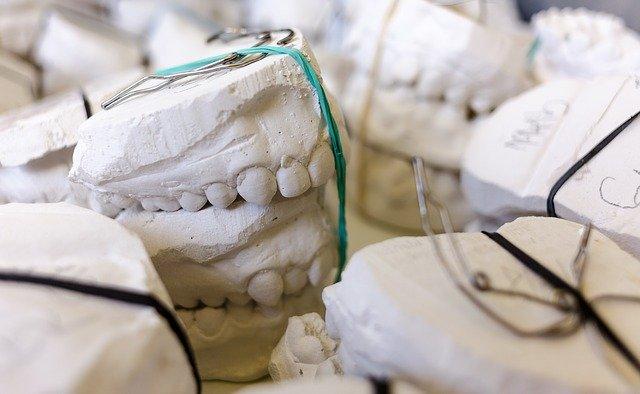 Come pulire la dentiera: l'approccio più efficace