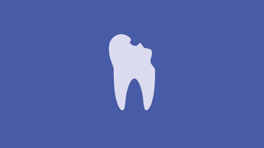 Denti rotti: come gestirli e curarli