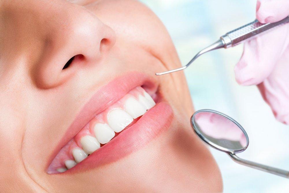 Che cos'è l'ortodonzia invisibile