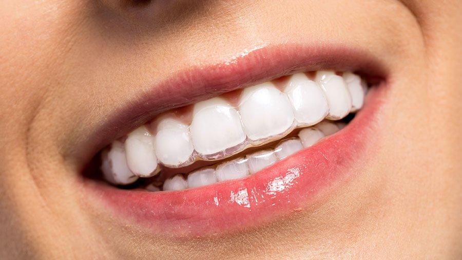 Raddrizzare i denti: quale apparecchio scegliere?