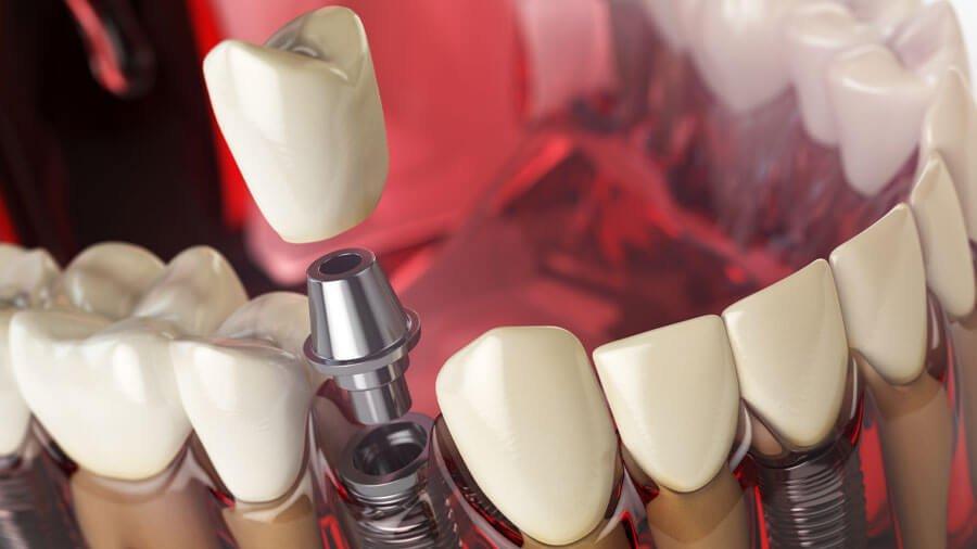 Impianto dentale rigetto o insuccesso